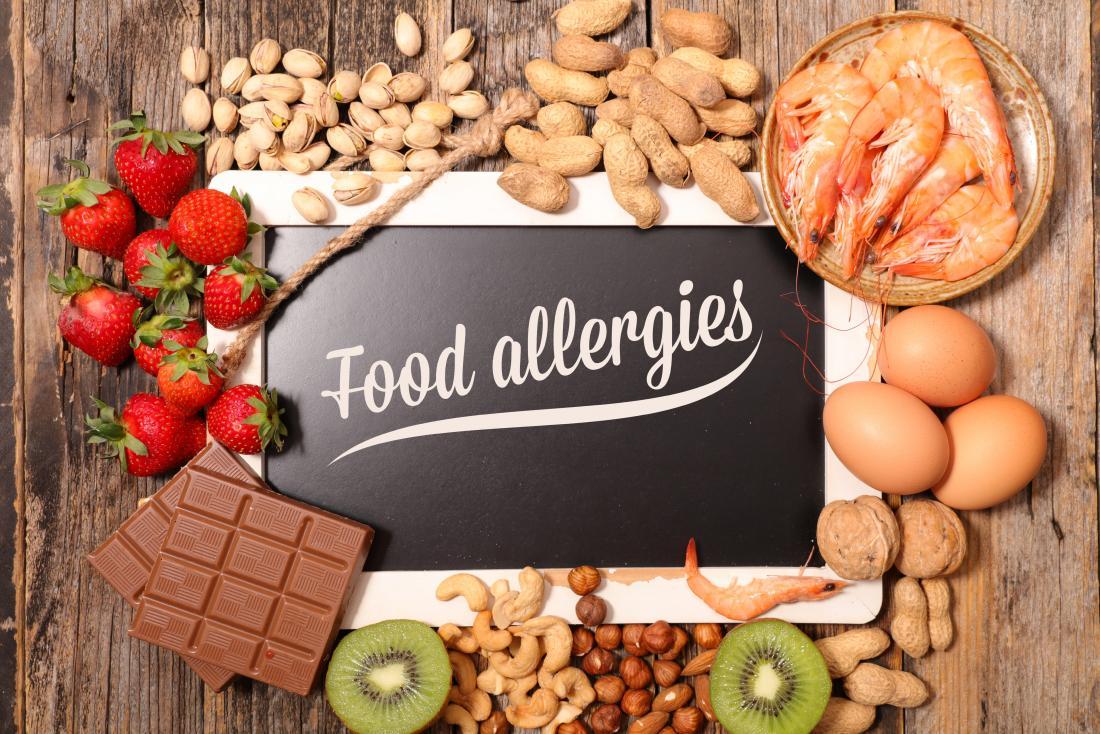 Allergies – Food Allergies